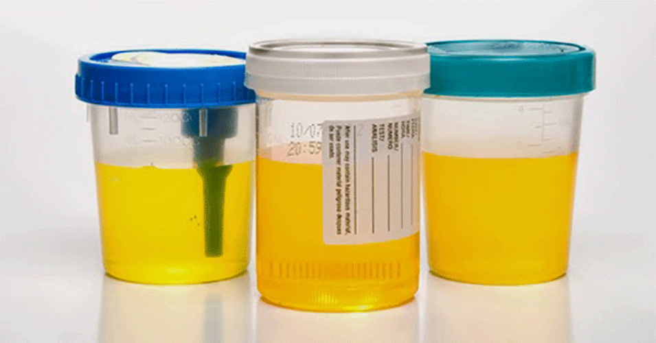 Buy Synthetic Urine And Understand The Differences Between Urine And Blood Drug Tests