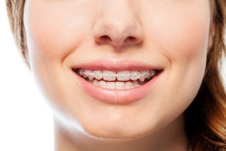 Orthodontic Treatment Services Provided in A Specific Location