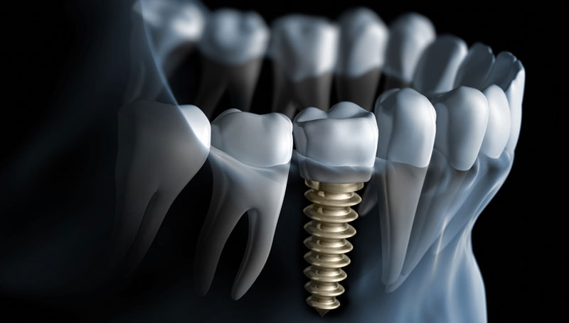 How Successful Your Life Could Be With Dental Implants