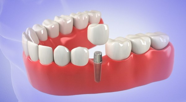 Get Dental Implants Near Your Home